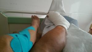 Mein getaptes Knie neben dem frisch operierten Fuß meines lieben Mannes